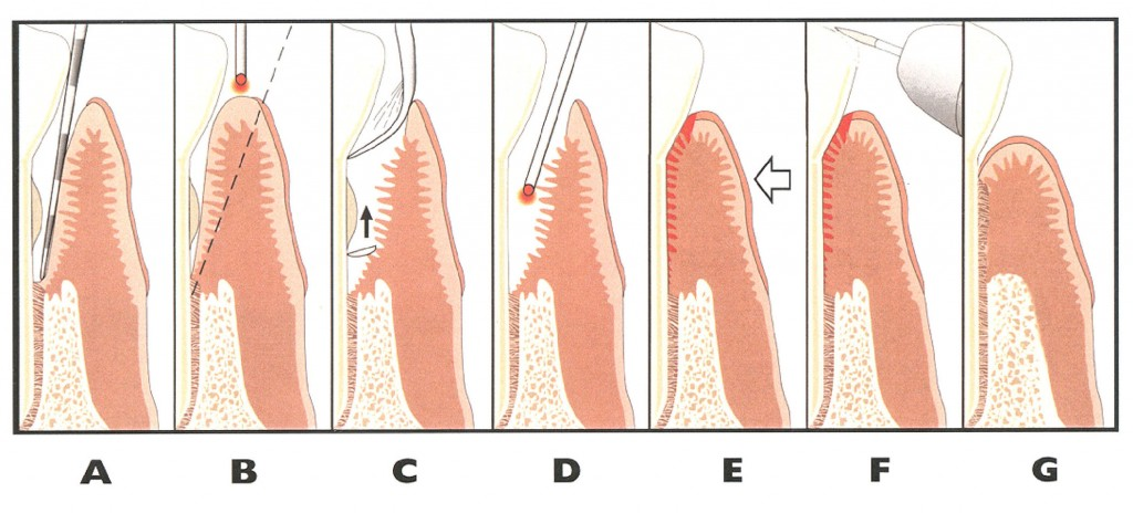 Laser Periodontal Therapy Steps