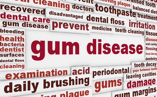 dca-blog_gum-disease1