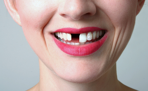 dca-blog_tooth-extraction