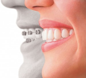 Invisalign - braces alternative