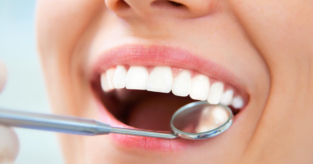 dca-blog-262-Dental-Sealants_1200x630