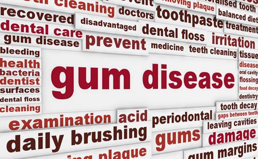 dca-blog_gum-disease